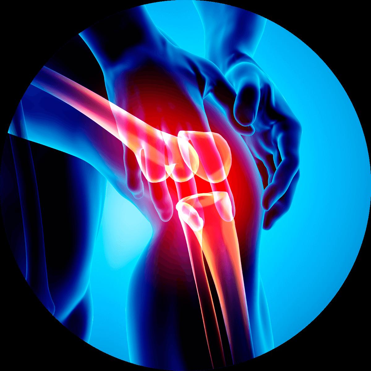 Przewlekły ból kolana