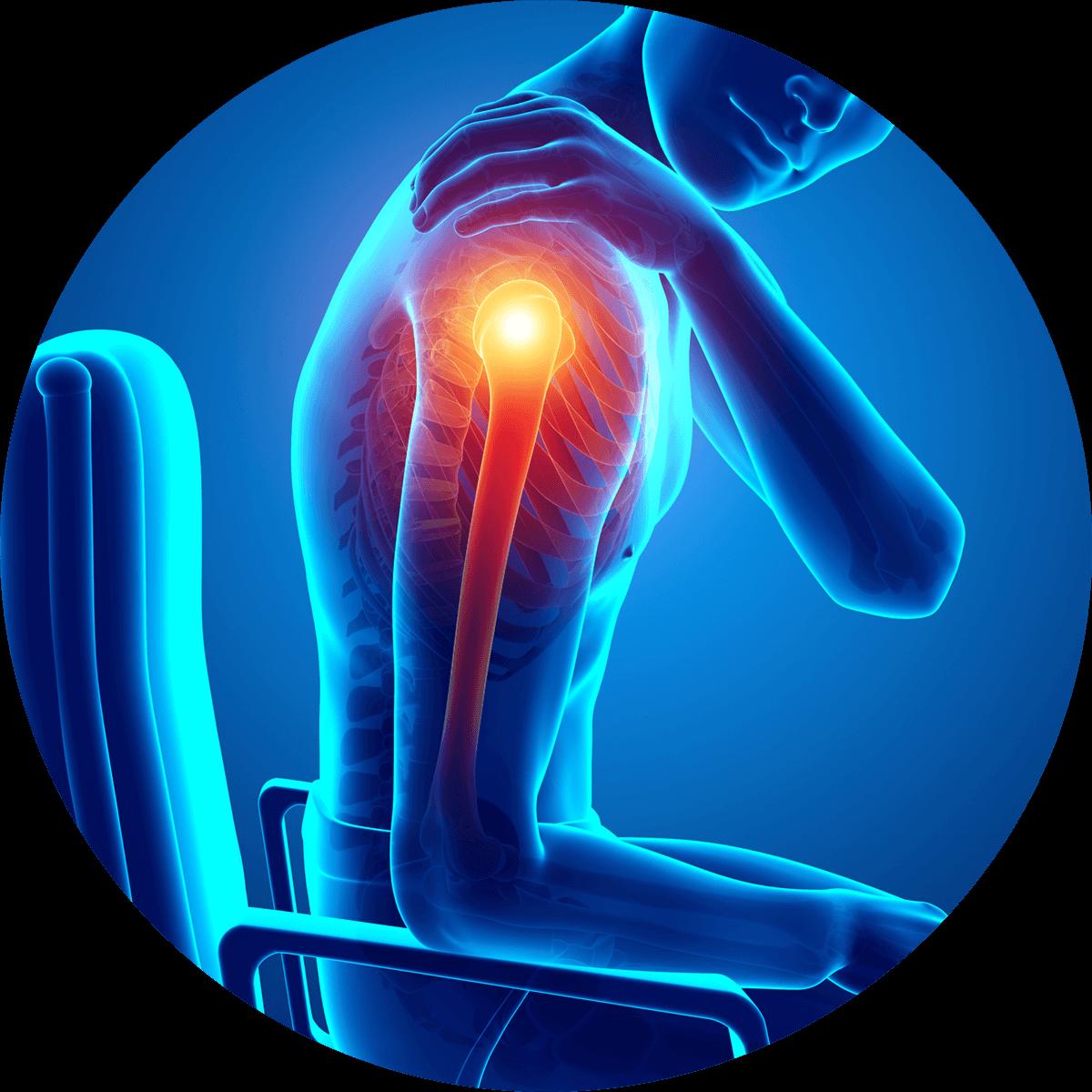 Przewlekły ból ramienia