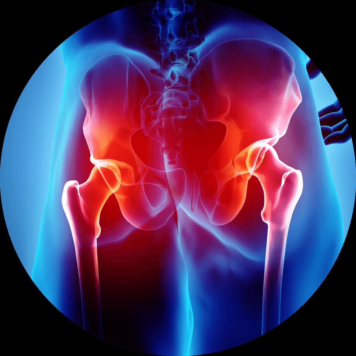Reumatyzm ichoroby reumatyczne